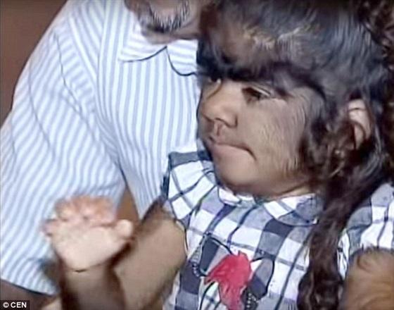 مخاوف والدي «الطفلة الذئب» تزداد بعد توقف علاجها2