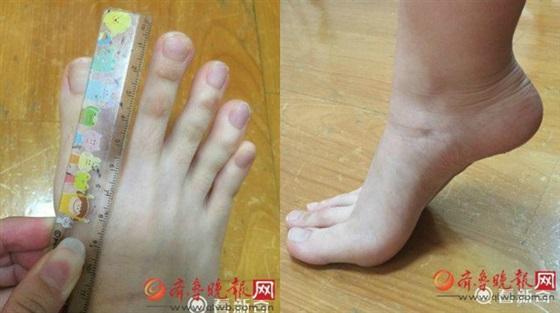 فتاة تثير ضجة على الإنترنت بسبب أصابع قدميها الطويلة