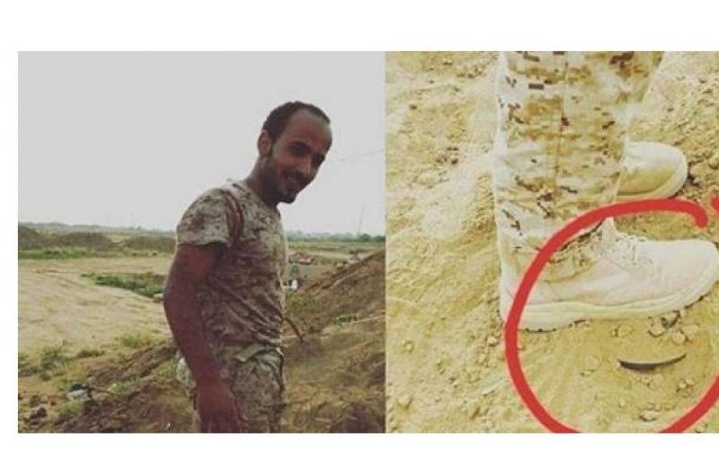 كيف أُنقذ هذا الجندي السعودي من الموت بعدما داس على لغم ؟