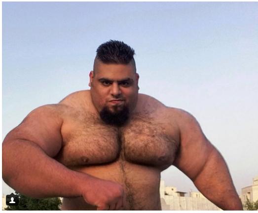 شاهد بالصور رجل يتحول إلى هالك الحقيقي بحقن عضلاته بالزيت النيلين
