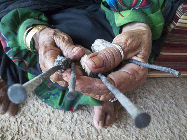 Fatimah displays her medical tools. A hearth for heating them red-hot completes her kit.