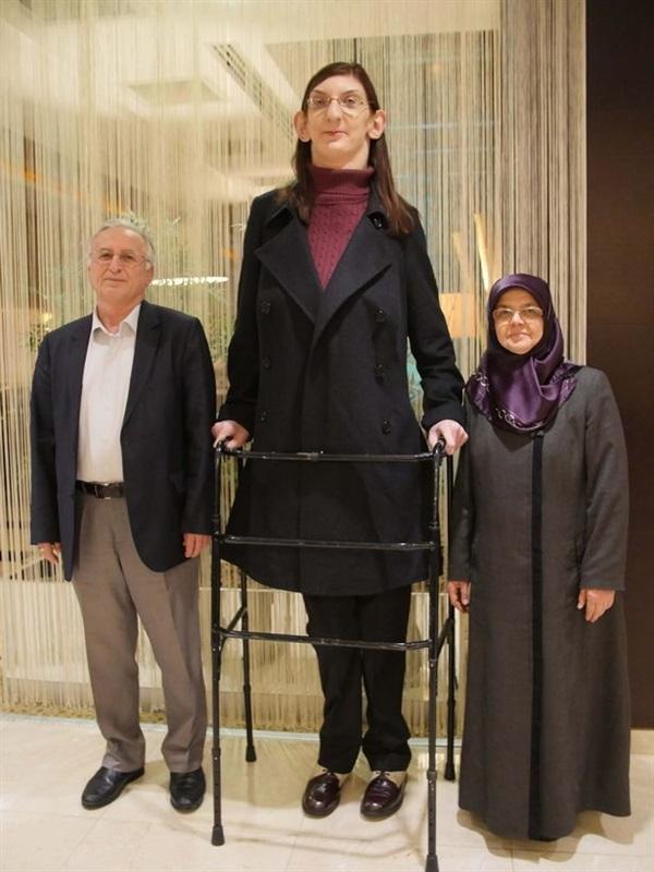 أطول مراهقة في العالم طولها 213 سنتيمترا