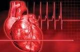فحص جديد يتنبأ بمخاطر الإصابة بالسكتة القلبية