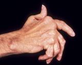 دواء ضد التهاب المفاصل