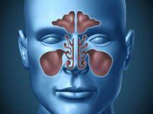 علاج الجيوب الأنفية من الحالات العادية إلى المزمنة